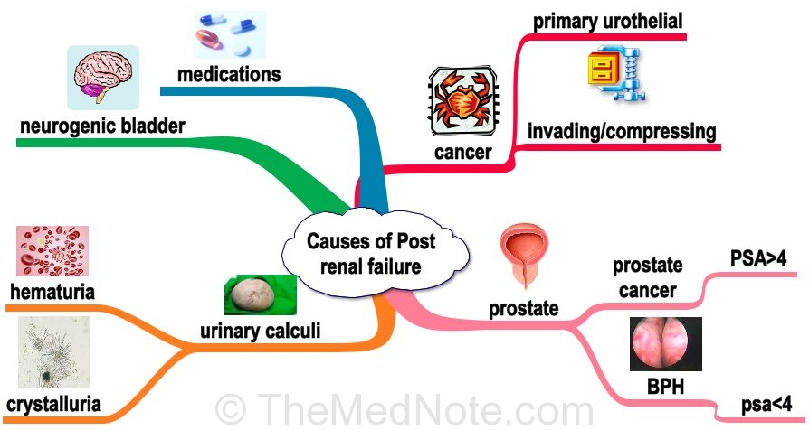 Causes Of Post Renal Arf Categories Acute Failure
