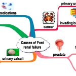 causes-of-post-renal-arf
